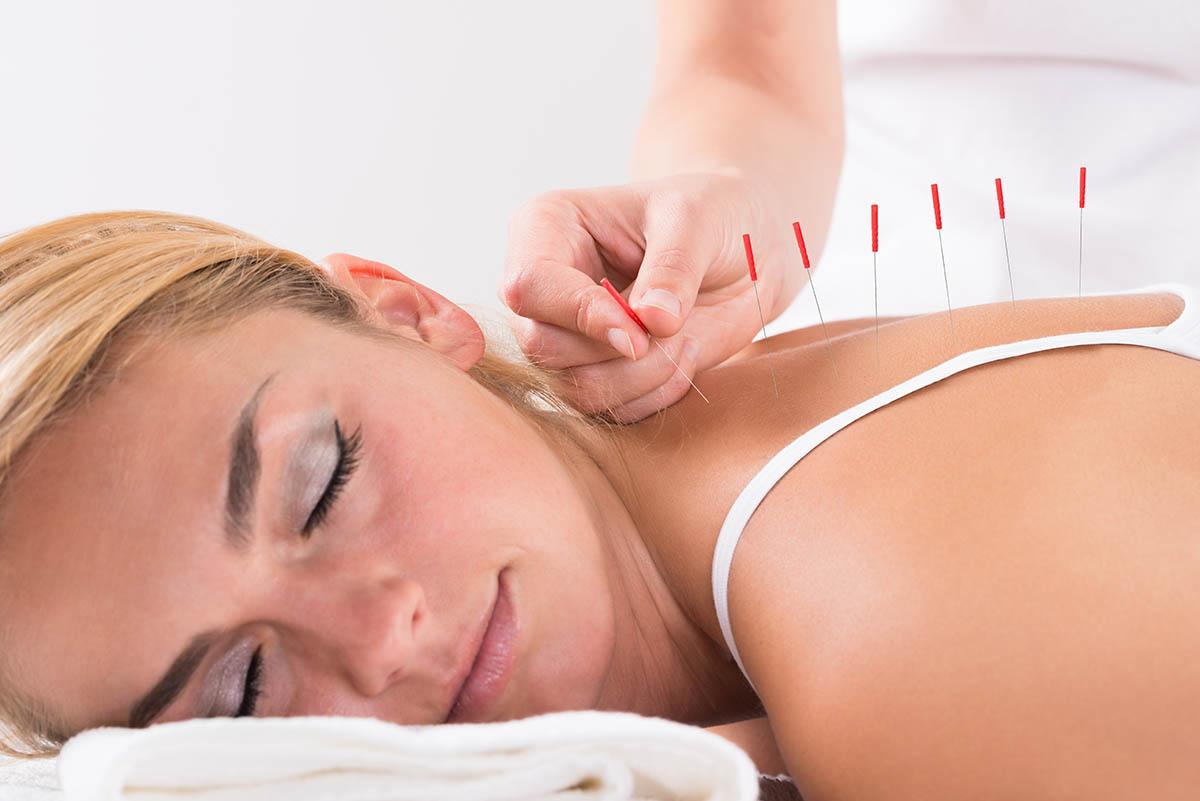 Acupuncture: Neck pain