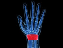 Wrist Pain Treatment - 1