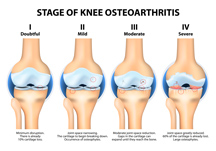 Stages Of Knee Osteoarthritis – PhysioNow