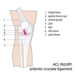 Anterior Cruciate Ligament Injury Diagram – PhysioNow
