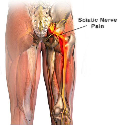 Sciatica Treatment Mississauga
