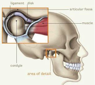 TMJ syndrome