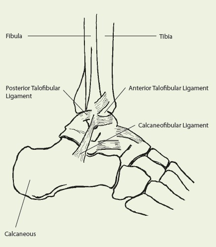 Acute Ankle Sprains